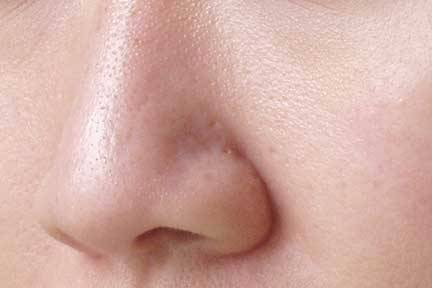 large-pores-on-nose